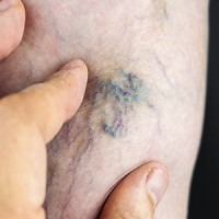 Helping-treat-and-prevent-varicose-veins