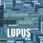 Glutathione-and-Lupus