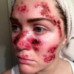 Tawny-Willoughby-skin-cancer